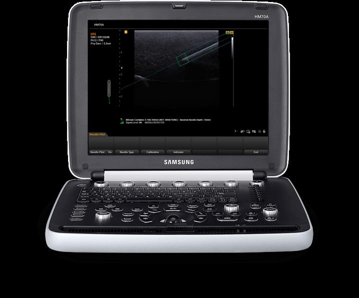 Ecógrafo Samsung HM70A